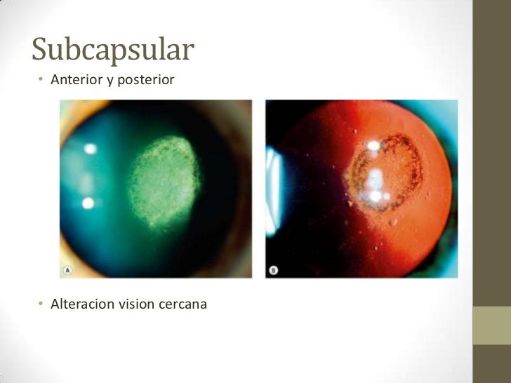 subcapsular cataract steroid