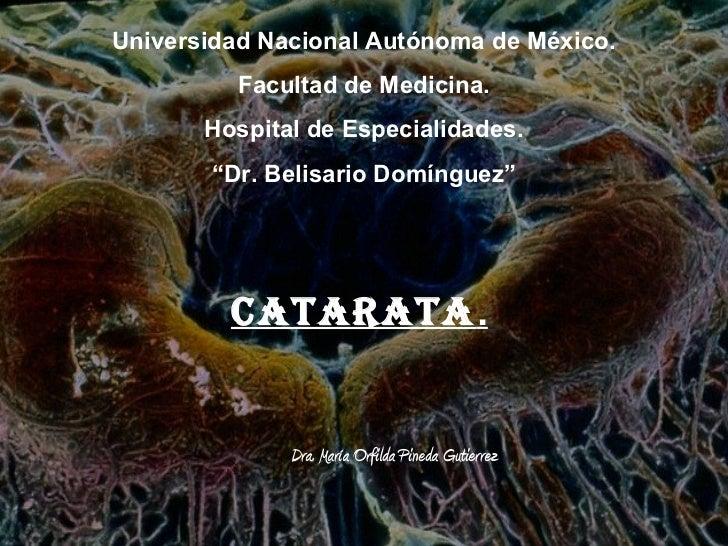 Cataratas orfi