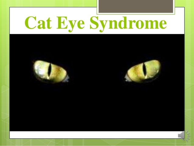 Human With Cat Eyes Syndrome Cat Eye Syndrome