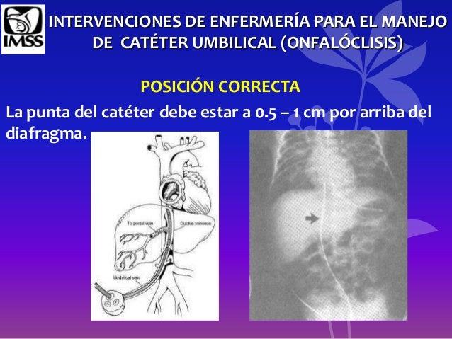 El tratamiento de la artrosis y varikoza