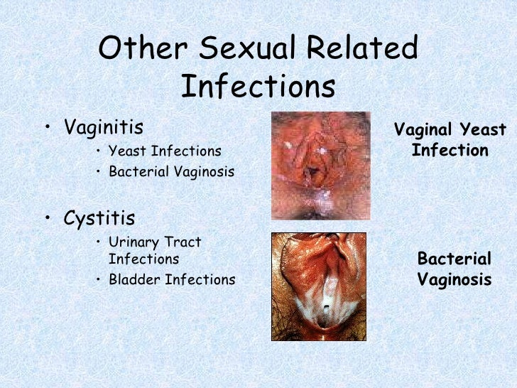 Anal sex infection