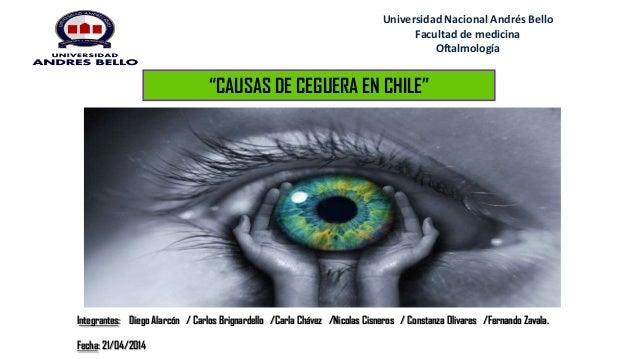 """Universidad Nacional Andrés Bello Facultad de medicina Oftalmología """"CAUSAS DE CEGUERA EN CHILE"""" Integrantes: Diego Alarcó..."""