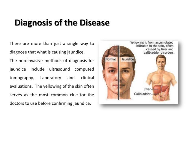 Jaundice: Symptoms Treatment