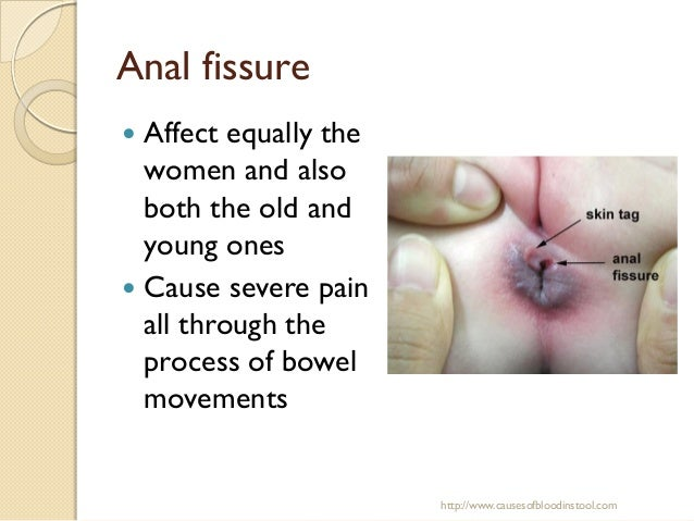 Blood in stool anal fissures