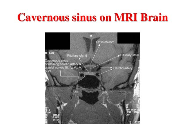 Cavernous Sinus Thrombosis Pdf Ppt