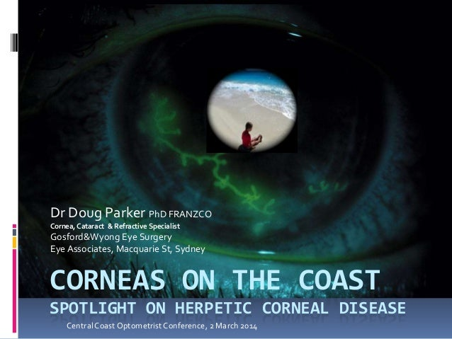 CORNEAS ON THE COAST SPOTLIGHT ON HERPETIC CORNEAL DISEASE Dr Doug Parker PhD FRANZCO Cornea, Cataract & Refractive Specia...