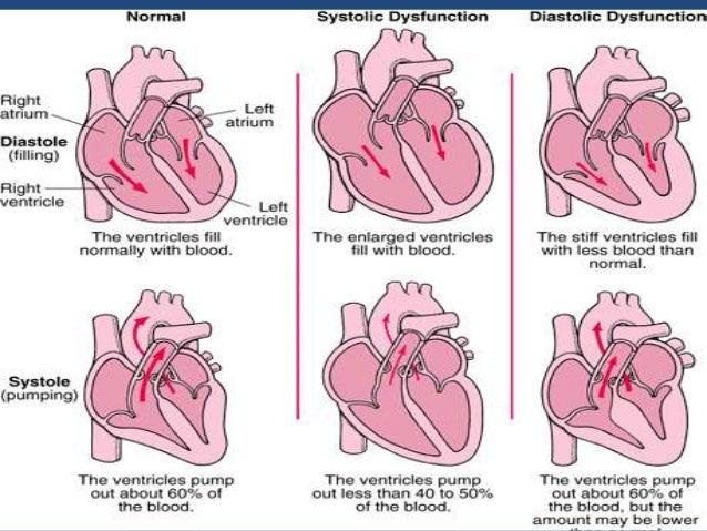 diagnosis of congestive heart failure pdf