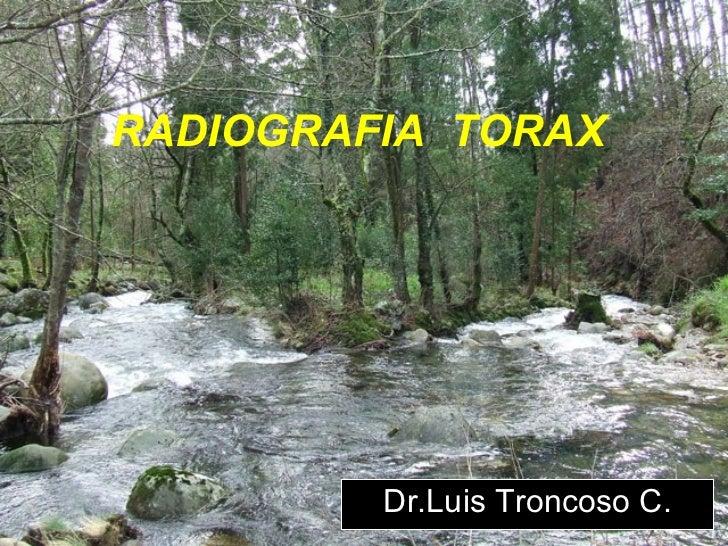 RADIOGRAFIA  TORAX Dr.Luis Troncoso C.