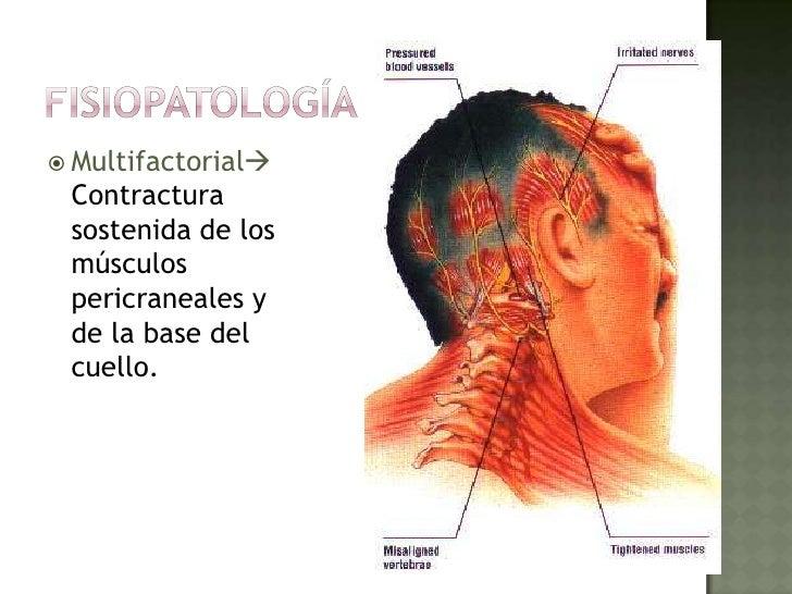 Dimeksid a la osteocondrosis de pecho
