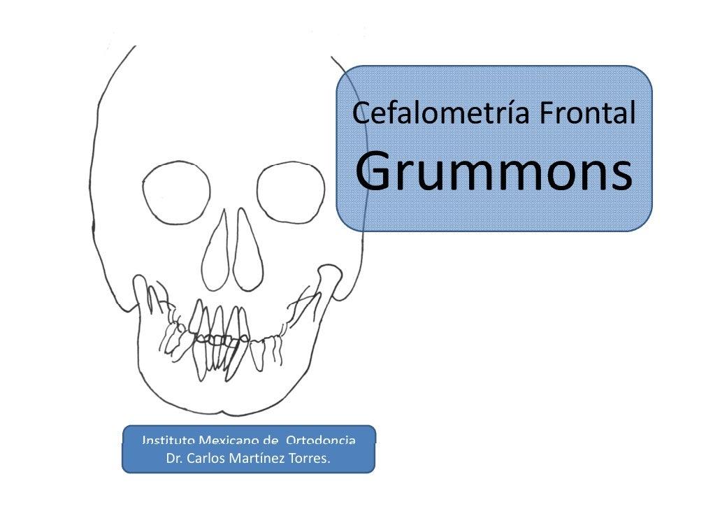 GRUMMONS FRONTAL