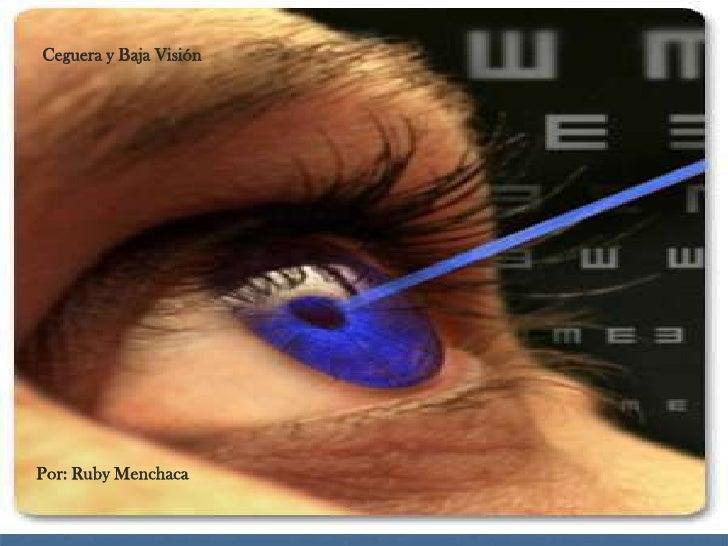 Ceguera y Baja Visión     Por: Ruby Menchaca