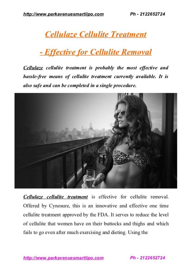 http://www.parkavenuesmartlipo.com                   Ph - 2122652724          Cellulaze Cellulite Treatment        - Effec...