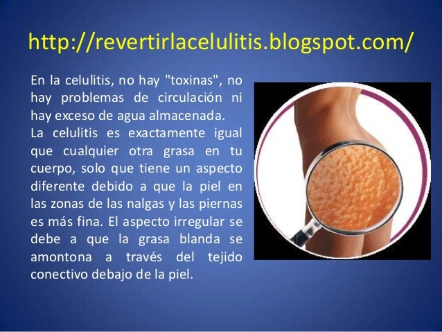 """http://revertirlacelulitis.blogspot.com/ En la celulitis, no hay """"toxinas"""", no hay problemas de circulación ni hay exceso ..."""