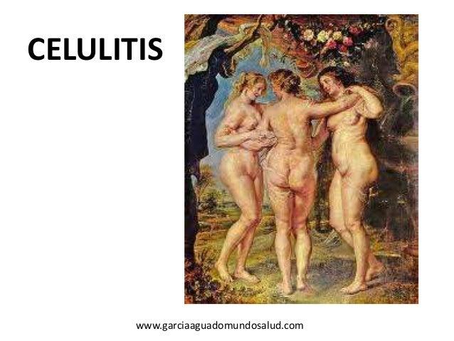 CELULITIS www.garciaaguadomundosalud.com