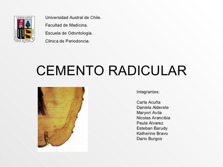 CEMENTO RADICULAR Integrantes: Carla Acuña Daniela Alderete Maryori Avila Nicolas Arancibia Paula Alvarez Esteban Barudy K...