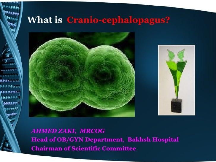What is Cranio-cephalopagus?AHMED ZAKI, MRCOGHead of OB/GYN Department, Bakhsh HospitalChairman of Scientific Committee