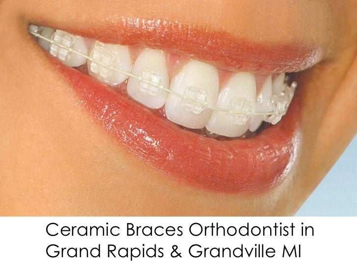 Ceramic Braces Orthodontist inGrand Rapids & Grandville MI