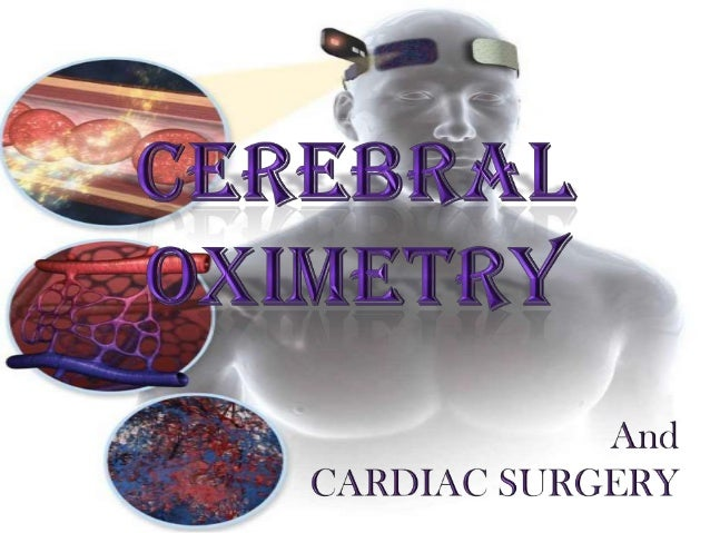 Cerebral oximetry
