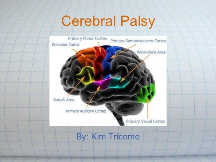 Cerebral Palsy By: Kim Tricome