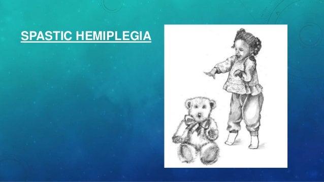spastic hemiplegia Gallery