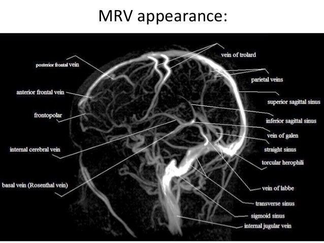 Cerebral venous anatomy