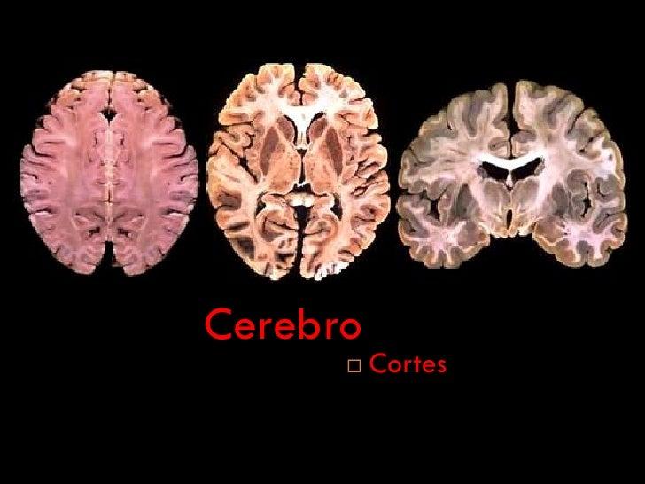 Cerebro, Cortes