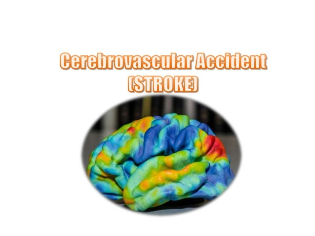 • Stroke is a clinical syndrome characterized byrapidly developing clinical symptoms and/orsigns of focal, and at times gl...