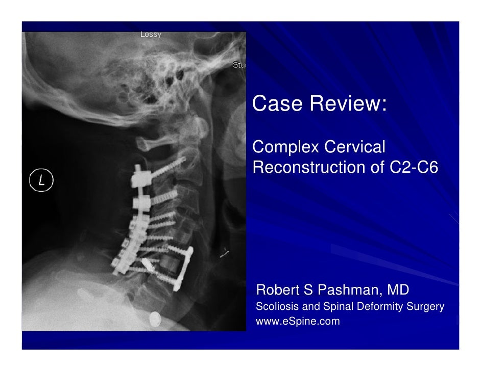 Case Review:Complex CervicalReconstruction of C2-C6Robert S Pashman, MDScoliosis and Spinal Deformity Surgerywww.eSpine.com