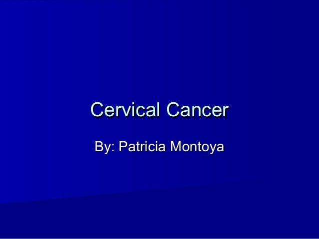 Cervical CancerCervical CancerBy: Patricia MontoyaBy: Patricia Montoya
