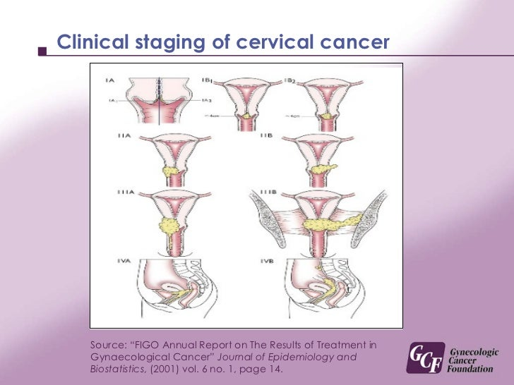stages of cervical cancer The type of treatment used for cervical cancer depends on the stage at diagnosis standard treatment includes surgery, radiation, and chemotherapy.