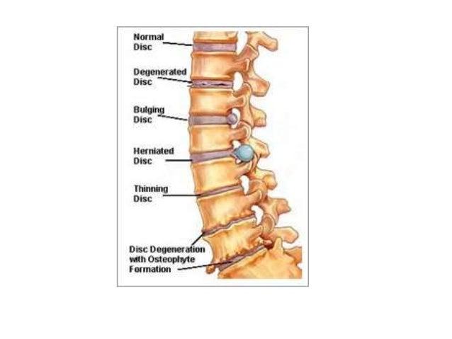 spinal cord compression steroid dose