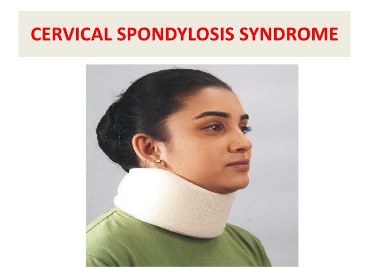 CERVICAL SPONDYLOSIS SYNDROME