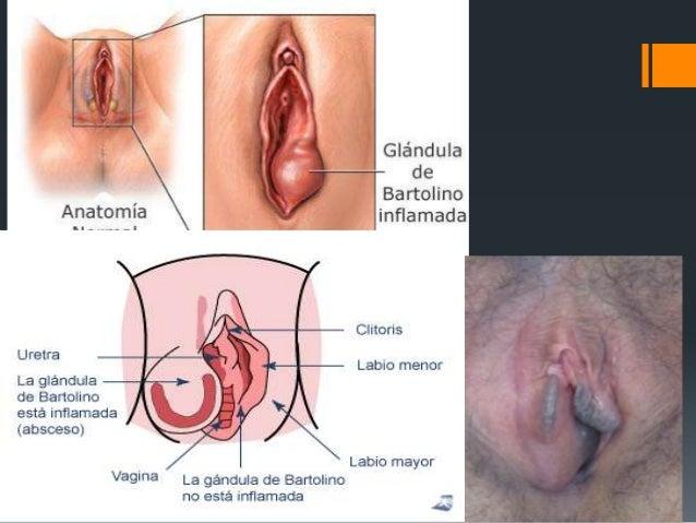 Como la hernia inguinal influye sobre la potencia del hombre
