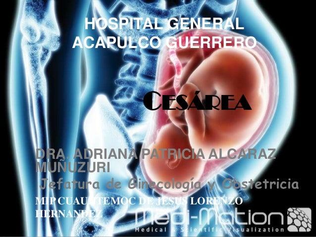 HOSPITAL GENERAL     ACAPULCO GUERRERO                CESÁREADRA. ADRIANA PATRICIA ALCARAZMUÑUZURIJefatura de Ginecología ...