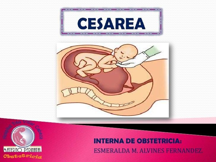 INTERNA DE OBSTETRICIA:ESMERALDA M. ALVINES FERNANDEZ.