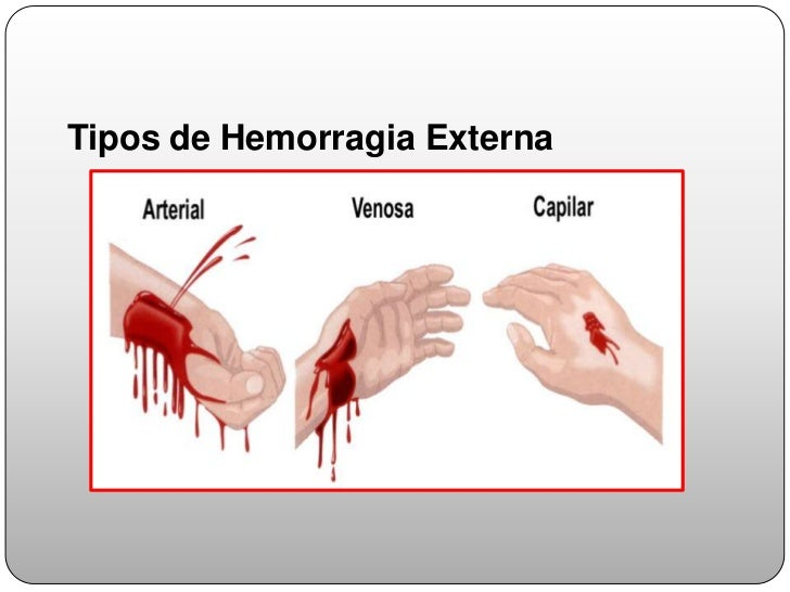 hemorragia tratamiento: