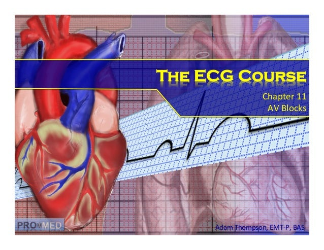 The ECG Course Chapter	   11	    AV	   Blocks	     Adam	   Thompson,	   EMT-­‐P,	   BAS