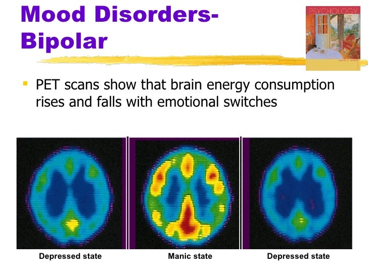 anxiety disorder and the brain essay