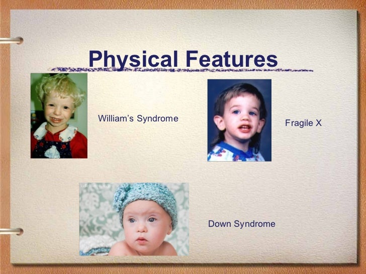 causes of physical disability pdf