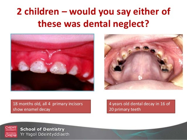 Diet and Dental Caries in Children photo