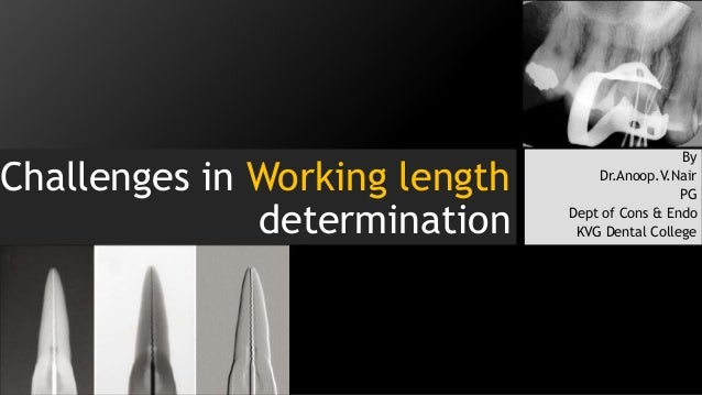 Challenges in Working length determination By Dr.Anoop.V.Nair PG Dept of Cons & Endo KVG Dental College