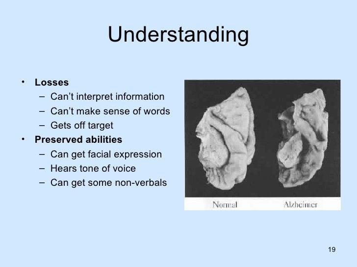 teepa snow understanding dementia essay