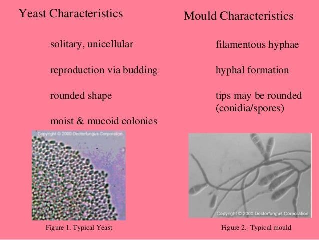 an analysis of the characteristics of yeast The classification rates obtained suggested that nir spectroscopy can be used as a rapid screening of yeast, allowing the initial clustering of yeast strains with similar extra cellular metabolomes, followed by a more precise method, such as gc–ms, ms or hplc, for a more detailed analysis of the yeast.