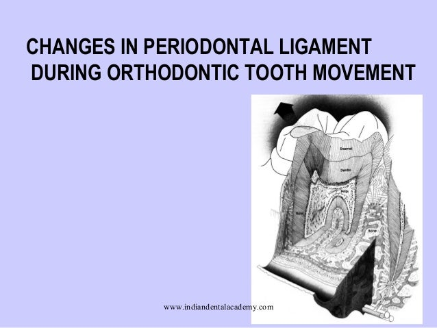 CHANGES IN PERIODONTAL LIGAMENT DURING ORTHODONTIC TOOTH MOVEMENT  www.indiandentalacademy.com  1