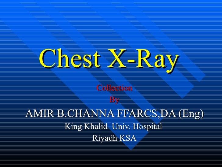 Chest X-Ray   Collection By AMIR B.CHANNA FFARCS,DA (Eng) King Khalid  Univ. Hospital  Riyadh KSA