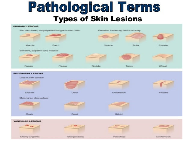 Description of Skin Lesions - MSD Manual Professional Edition