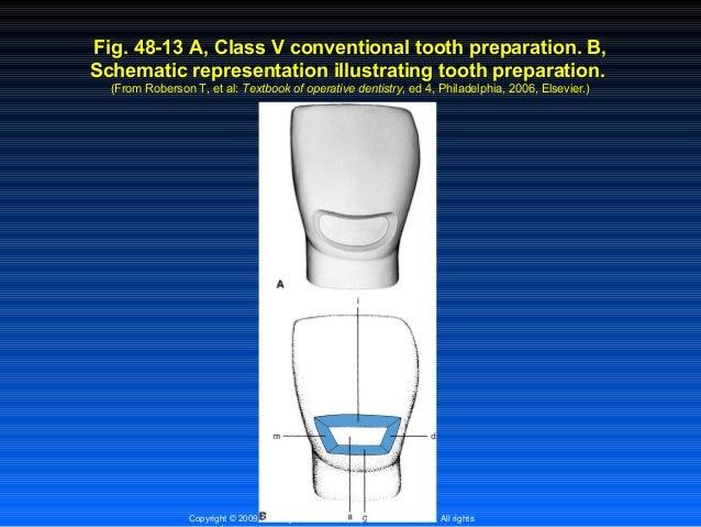 class 4 composite restoration pdf