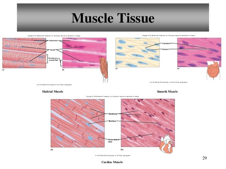 muscle tissue report Blue histology - muscle: topics lab bundles of purkinje fibres are present in areas of connective tissue between areas of normal cardiac muscle tissue and.