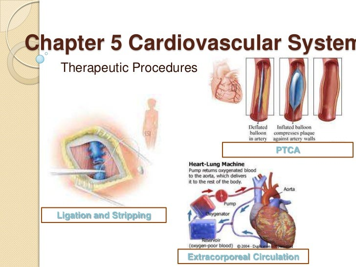Chapter 5 Cardiovascular System   Therapeutic Procedures                                               PTCA  Ligation and ...