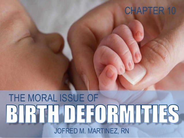 Bioethics Birth Deformities